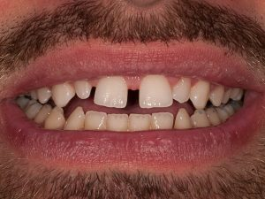 Dents originales