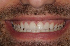 Dents après traitement