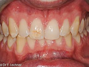 prisma dentistes- avant traitement blachiment
