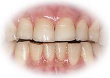 dents usées par bruxisme
