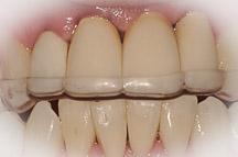 plaque occlusale placée sur les dents afin de protéger contre le bruxisme
