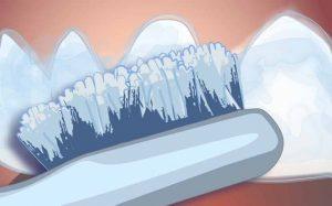 Enlever la gouttière et brosser vous les dents.