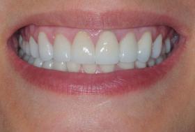 perfect teeth health dental diet