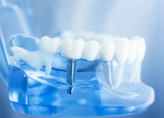 Des implants dentaires sur un modèle