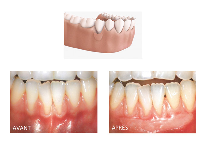 Greffe gingivale libre ou de tissu conjonctif