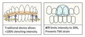 NTI the help with headaches
