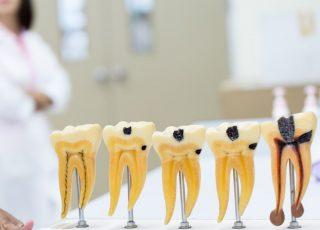 Le traitement de canal en 4 questions | Prisma Dentistes